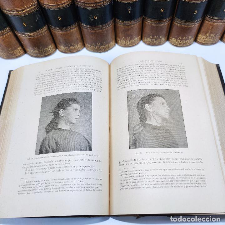 Libros antiguos: Tratado de cirugía clínica y operatoria. A. Le Dentu. Pierre Delbet. 11 tomos. Madrid. 1899. - Foto 11 - 290961708