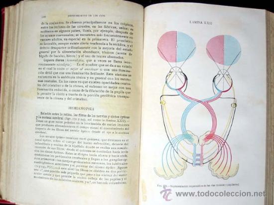 Libros antiguos: MANUAL de las ENFERMEDADES de los OJOS, por CHARLES H. MAY, 1922 - Foto 5 - 26186145