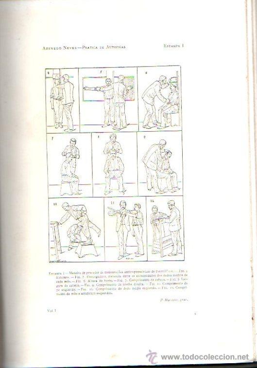 Libros antiguos: PRACTICA DE AUTOPSIAS. TECNICA Y DIAGNOSTICO VOL.1. POR AZEVEDO NEVES. ED. LIB. FERREIRA.LISBOA 1901 - Foto 5 - 15584845