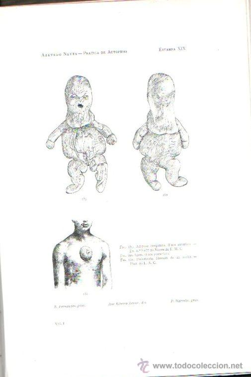 Libros antiguos: PRACTICA DE AUTOPSIAS. TECNICA Y DIAGNOSTICO VOL.1. POR AZEVEDO NEVES. ED. LIB. FERREIRA.LISBOA 1901 - Foto 6 - 15584845