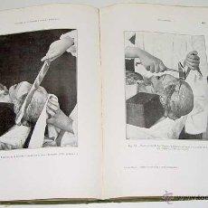 Alte Bücher - Antonio Lecha-Marzo - Tratado de Autopsias y Embalsamamientos - 1917,MAD,Los Progresos de la Clinica - 38240056