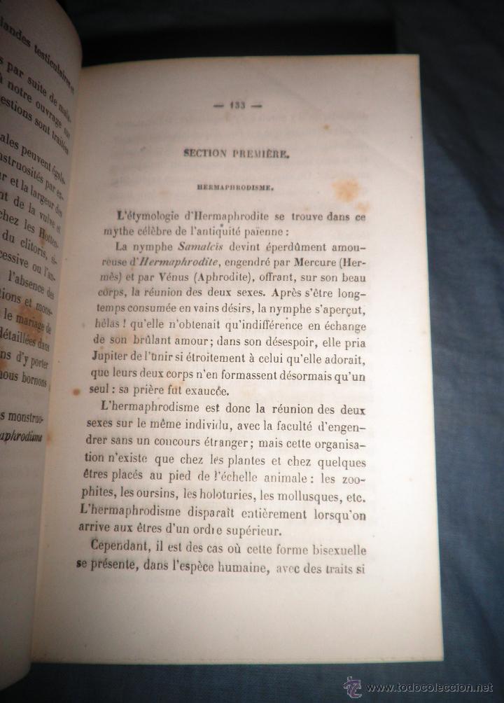 Libros antiguos: MONSTRUOSIDADES HUMANAS - AÑO 1863 - A.DEBAY - IMPRESIONANTES GRABADOS. - Foto 4 - 51761917