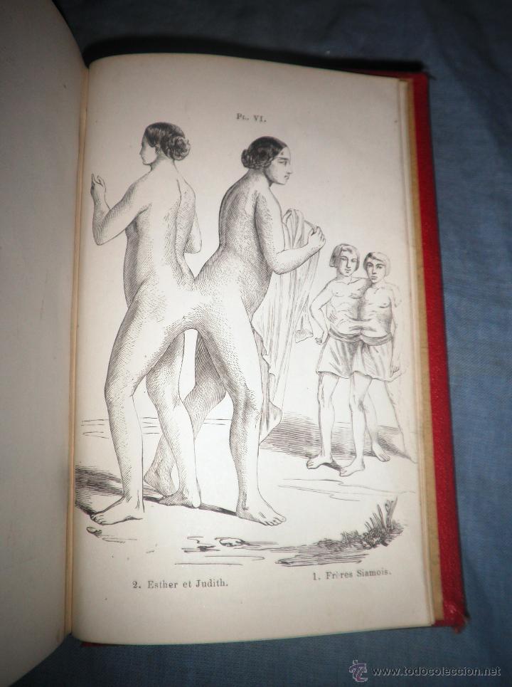 Libros antiguos: MONSTRUOSIDADES HUMANAS - AÑO 1863 - A.DEBAY - IMPRESIONANTES GRABADOS. - Foto 6 - 51761917