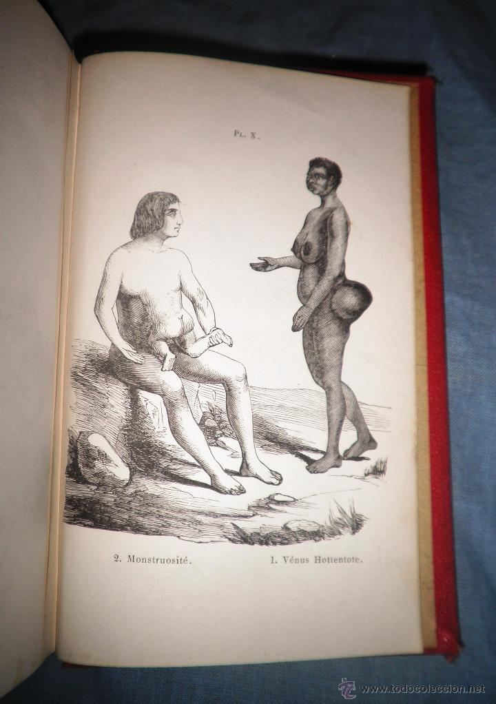 Libros antiguos: MONSTRUOSIDADES HUMANAS - AÑO 1863 - A.DEBAY - IMPRESIONANTES GRABADOS. - Foto 7 - 51761917
