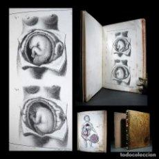 Libros antiguos: AÑO 1840 PARTOS MEDICINA CIRUGÍA GRABADOS A PLENA PÁGINA 2 VOLÚMENES OBSTETRICIA TRATADO MÉDICO. Lote 118141475