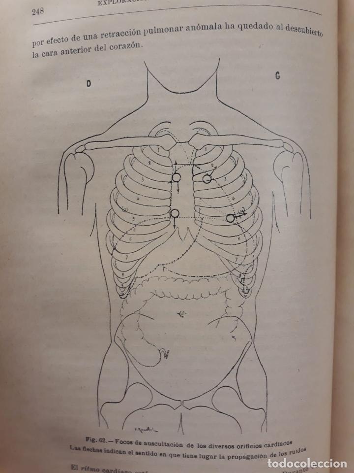 Libros antiguos: MANUAL DE DIAGNÓSTICO MÉDICO. AÑO 1900. TOMO I COROMINAS Y SABATER - Foto 4 - 209208273