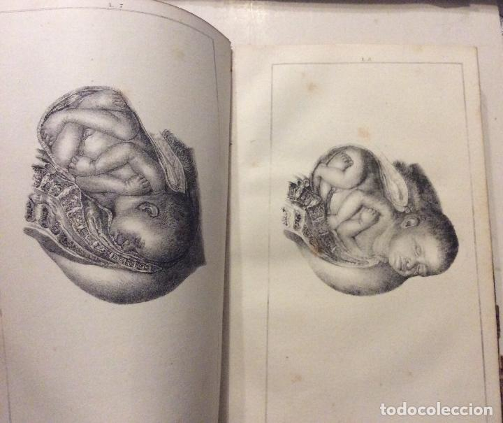 Libros antiguos: TRATADO PRACTICO DE PARTOS ,F.J.MOREAU ,MADRID 1842-TOMO II - Foto 2 - 234890995