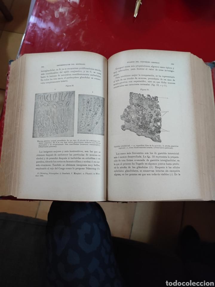 Libros antiguos: Libro universidad ENFERMEDADES DEL ESTOMAGO , con grabados , Madrid 1902 , ref 139 - Foto 4 - 288005998