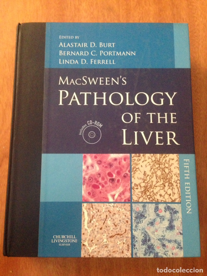 Libros: MacSweens Pathology of the Liver - Foto 1 - 135077278