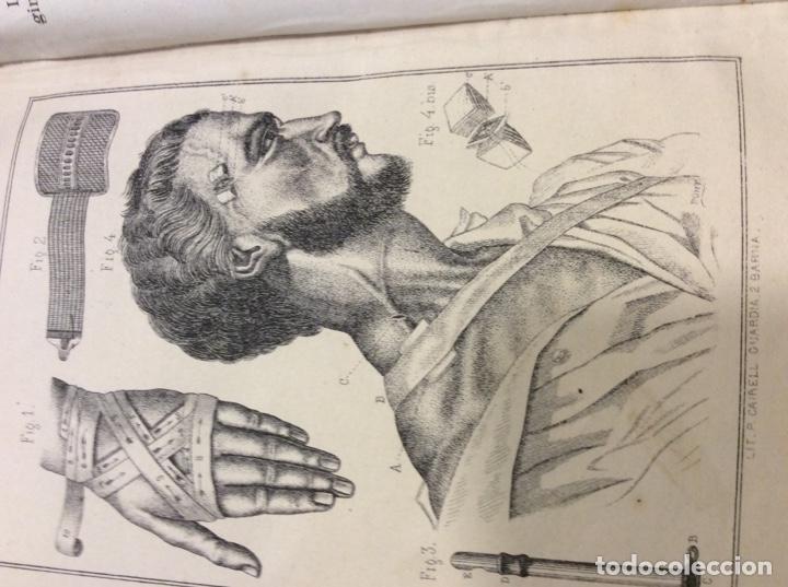 Libros: Vademecum del practicante. 1871. - Foto 9 - 146920174