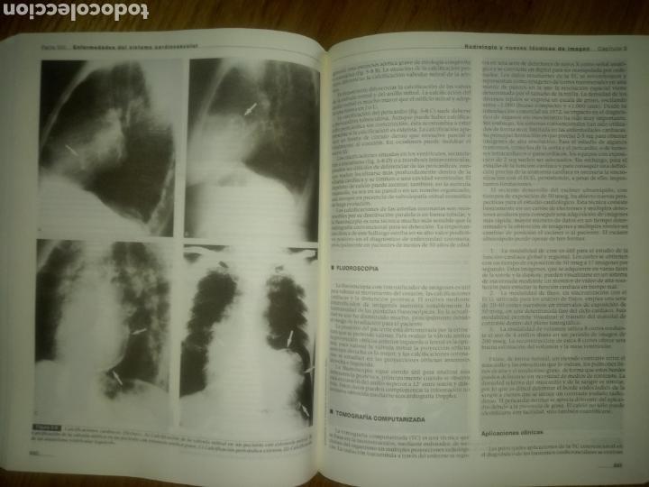 Libros: Libro MEDICINA INTERNA TOMO 1 ED MASSON J. RODES TEIXIDOR Y J. GUARDIA MASSO - Foto 6 - 171979459