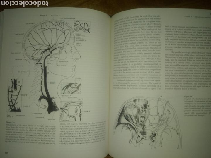 LIBRO PRINCIPLES OF NEUROLOGY RAYMOND D.ADAMS MAURICE VICTOR SEGUNDA EDICION (Libros Nuevos - Ciencias, Manuales y Oficios - Medicina, Farmacia y Salud)