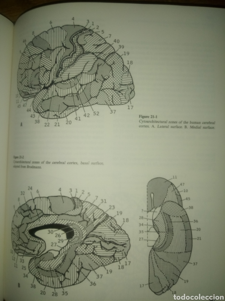 Libros: Libro PRINCIPLES OF NEUROLOGY RAYMOND D.ADAMS MAURICE VICTOR SEGUNDA EDICION - Foto 6 - 171986283
