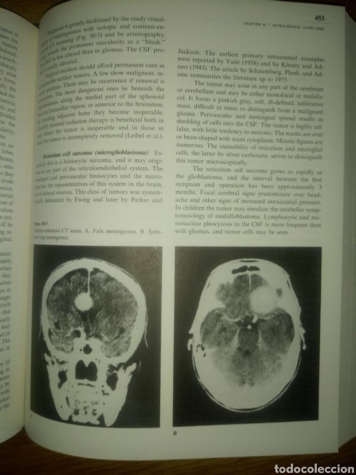 Libros: Libro PRINCIPLES OF NEUROLOGY RAYMOND D.ADAMS MAURICE VICTOR SEGUNDA EDICION - Foto 7 - 171986283