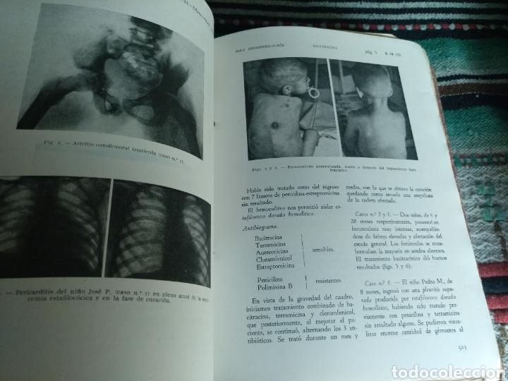 Libros: Archivos de pediatría años 50 y 60 - Foto 31 - 176636158