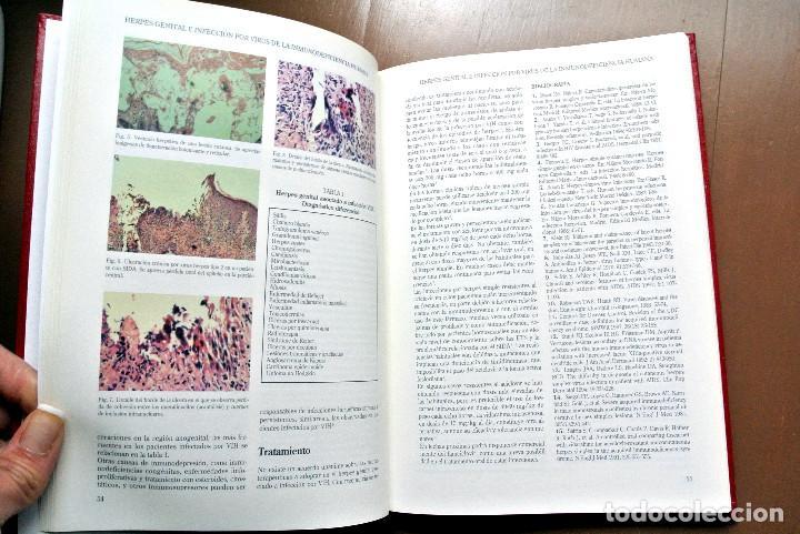 Libros: Libro DERMATOLOGIA , IDEPSA - Foto 2 - 207820445