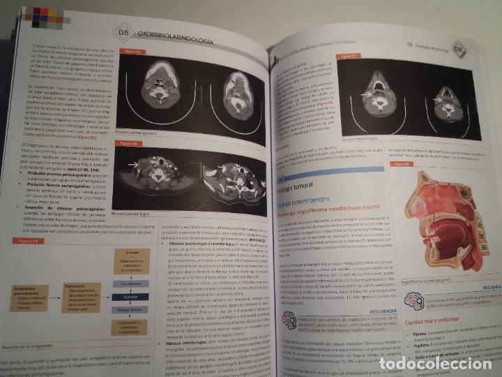 Libros: OTORRINOLARINGOLOGIA ESTUPENDO MANUAL COMPENDIO DE TODA LA LARINGOLOGIA NUEVO 2018 MIR - Foto 23 - 220422047