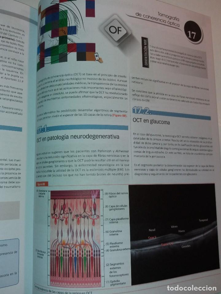Libros: OFTALMOLOGIA ESTUPENDO MANUAL COMPENDIO DE TODA LA OFTALMOLOGIA NUEVO 2018 MIR - Foto 34 - 220432130