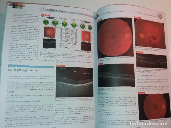 Libros: OFTALMOLOGIA ESTUPENDO MANUAL COMPENDIO DE TODA LA OFTALMOLOGIA NUEVO 2018 MIR - Foto 35 - 220432130