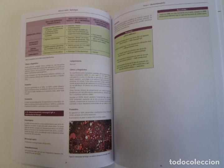 Libros: NEFROLOGIA ESTUPENDO MANUAL COMPENDIO DE TODA LA NEFROLOGIA NUEVO 2018 MIR - Foto 15 - 224243325