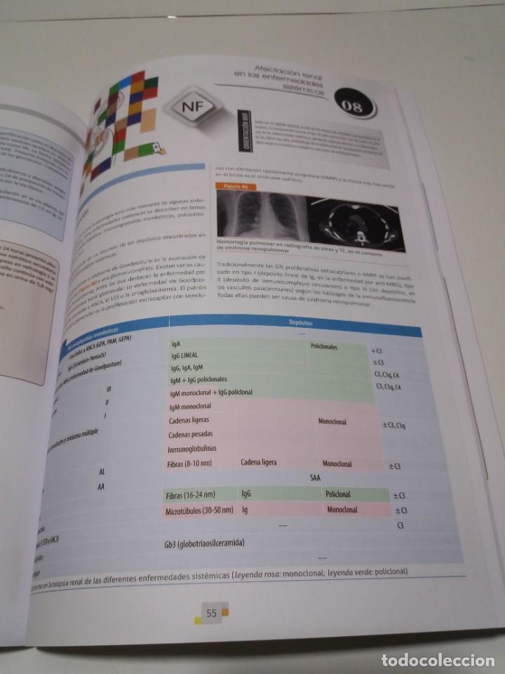 Libros: NEFROLOGIA ESTUPENDO MANUAL COMPENDIO DE TODA LA NEFROLOGIA NUEVO 2018 MIR - Foto 26 - 227444195