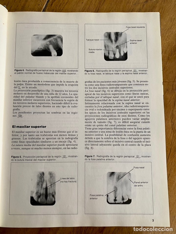 Libros: Radiología dental / Brian Beeching / 1983 - Foto 8 - 238732650