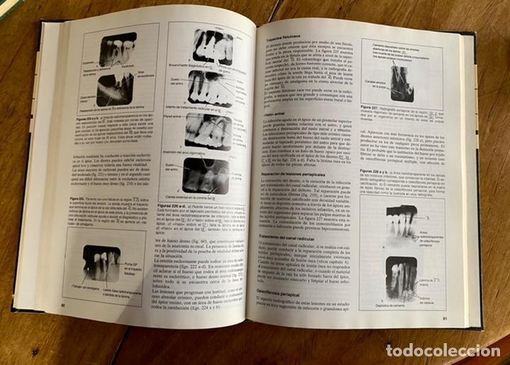 Libros: Radiología dental / Brian Beeching / 1983 - Foto 10 - 238732650