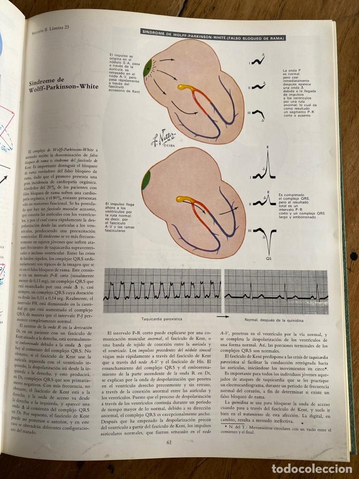 Libros: Tomo V Corazón/ Colección Ciba de ilustraciones médicas/ 1976 - Foto 6 - 238738975