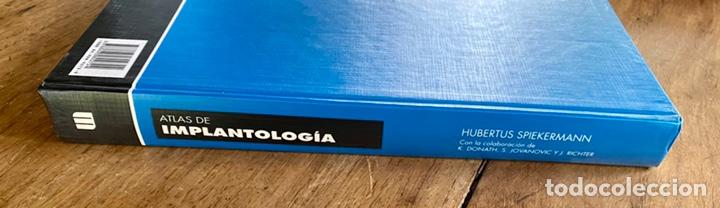 Libros: Atlas. De Implantología/ Hubertus Spiekermann - Foto 3 - 238746305