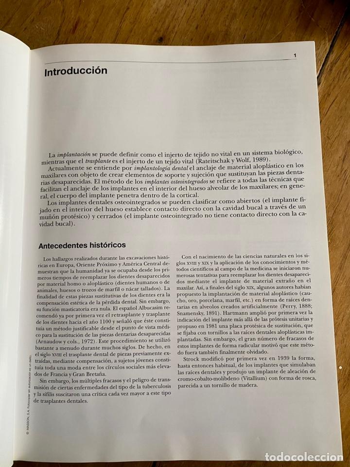 Libros: Atlas. De Implantología/ Hubertus Spiekermann - Foto 6 - 238746305