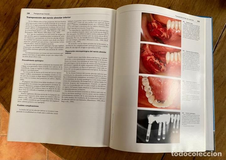 Libros: Atlas. De Implantología/ Hubertus Spiekermann - Foto 11 - 238746305