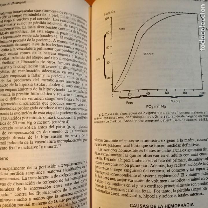 Libros: CLINICAS OBSTETRICAS Y GINECOLOGICAS, VOL. 1/1995, MEDICINA / MEDICINE, INTERAMERICANA, 1985 - Foto 2 - 243837235