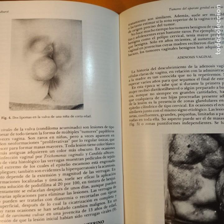 Libros: CLINICAS OBSTETRICAS Y GINECOLOGICAS, SEPTIEMBRE 1977, MEDICINA / MEDICINE, INTERAMERICANA, 1977 - Foto 2 - 243837705
