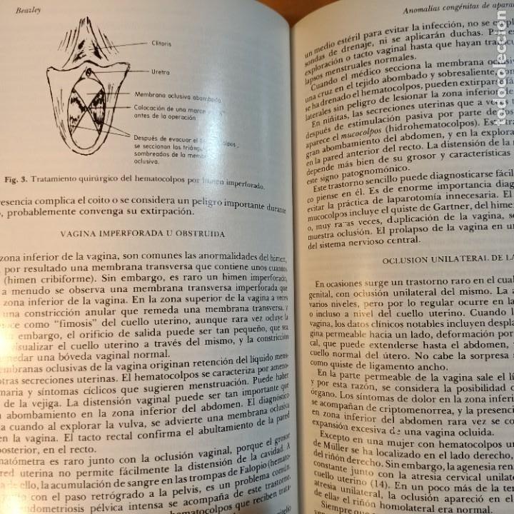 Libros: CLINICAS OBSTETRICAS Y GINECOLOGICAS, SEPTIEMBRE 1977, MEDICINA / MEDICINE, INTERAMERICANA, 1977 - Foto 3 - 243837705
