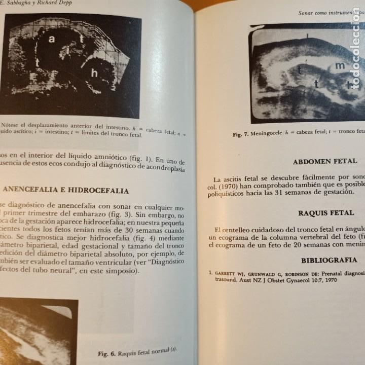 Libros: CLINICAS OBSTETRICAS Y GINECOLOGICAS, JUNIO 1977, MEDICINA / MEDICINE, INTERAMERICANA, 1977 - Foto 2 - 243837935