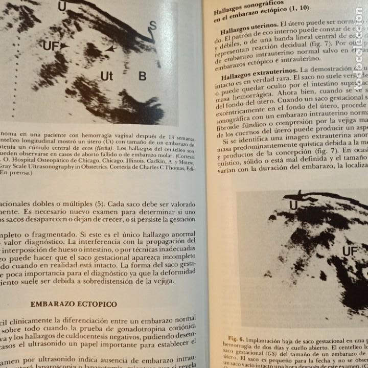 Libros: CLINICAS OBSTETRICAS Y GINECOLOGICAS, JUNIO 1977, MEDICINA / MEDICINE, INTERAMERICANA, 1977 - Foto 3 - 243837935