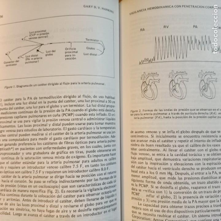 Libros: CLINICAS DE PERINATOLOGIA, VOL. 4/1986, MEDICINA / MEDICINE, INTERAMERICANA, 1986 - Foto 3 - 243838300