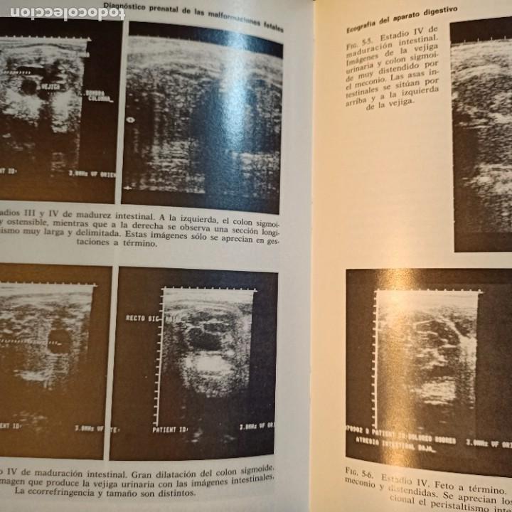 Libros: DIAGNOSTICO PRENATAL DE LAS MALFORMACIONES FETALES, F. BONILLA-MUSOLES, MEDICINA, JIMS, 1983 - Foto 2 - 243838895