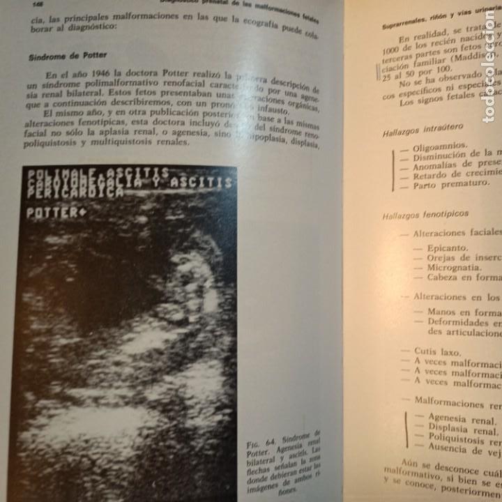 Libros: DIAGNOSTICO PRENATAL DE LAS MALFORMACIONES FETALES, F. BONILLA-MUSOLES, MEDICINA, JIMS, 1983 - Foto 4 - 243838895