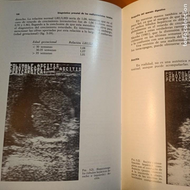 Libros: DIAGNOSTICO PRENATAL DE LAS MALFORMACIONES FETALES, F. BONILLA-MUSOLES, MEDICINA, JIMS, 1983 - Foto 5 - 243838895