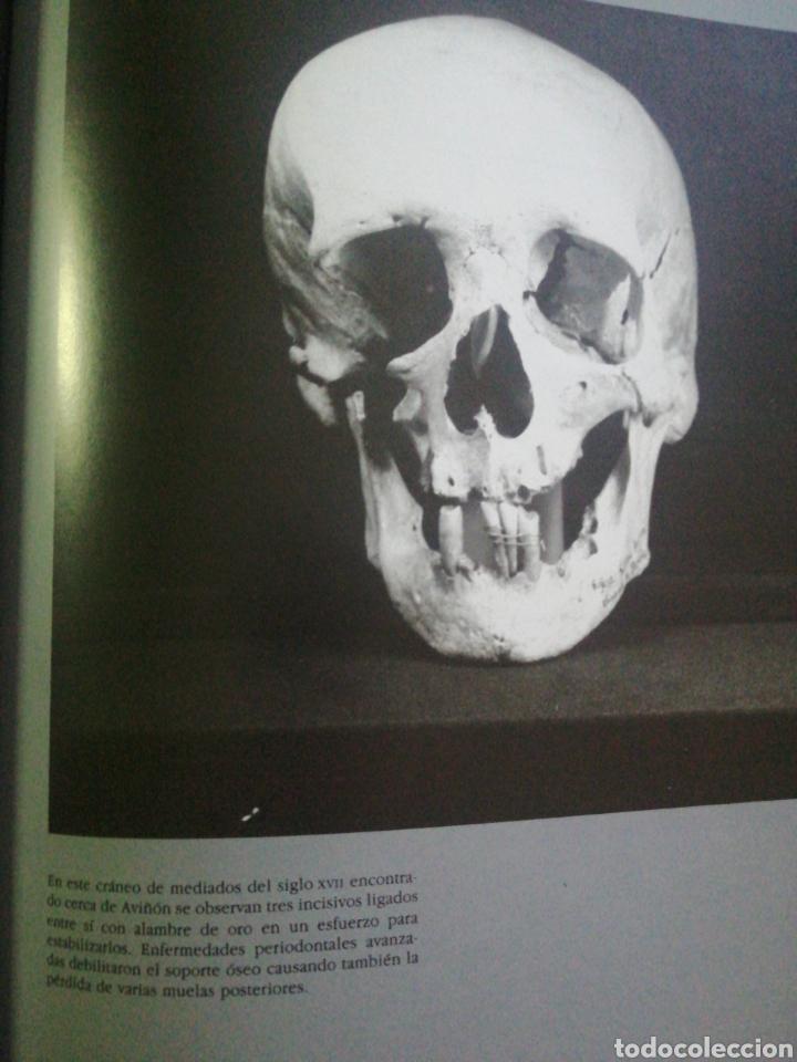 Libros: Historia de la Odontología - Foto 4 - 253956460