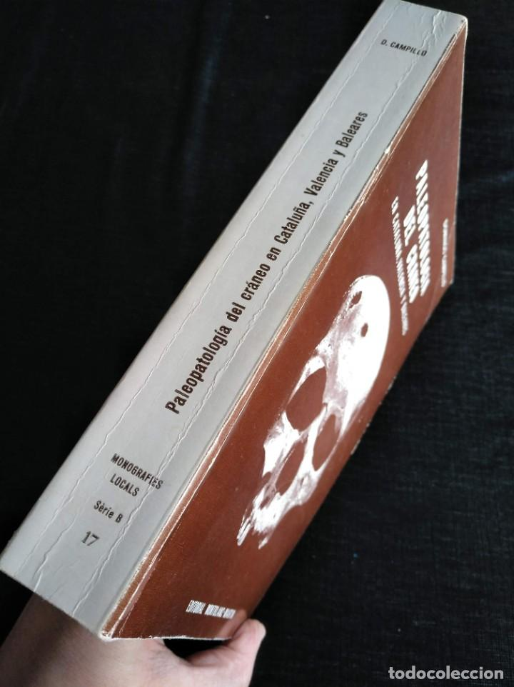 Libros de segunda mano: PALEOPATOLOGÍA DEL CRANEO EN CATALUÑA, VALENCIA Y BALEARES - DOMINGO CAMPILLO - Foto 2 - 195119312