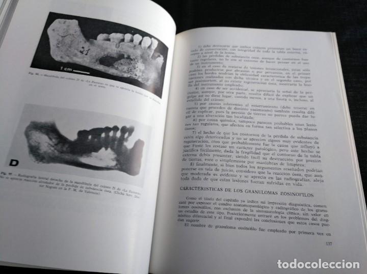 Libros de segunda mano: PALEOPATOLOGÍA DEL CRANEO EN CATALUÑA, VALENCIA Y BALEARES - DOMINGO CAMPILLO - Foto 4 - 195119312