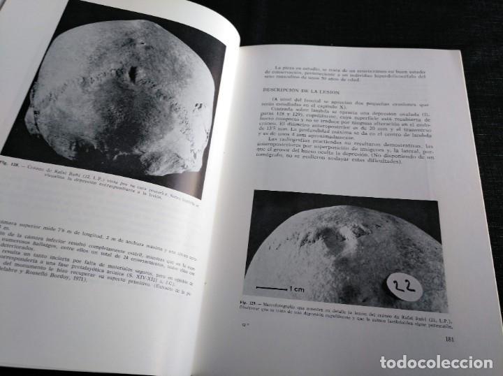 Libros de segunda mano: PALEOPATOLOGÍA DEL CRANEO EN CATALUÑA, VALENCIA Y BALEARES - DOMINGO CAMPILLO - Foto 5 - 195119312