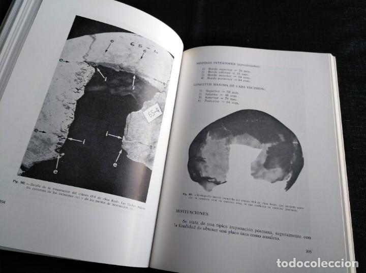 Libros de segunda mano: PALEOPATOLOGÍA DEL CRANEO EN CATALUÑA, VALENCIA Y BALEARES - DOMINGO CAMPILLO - Foto 7 - 195119312