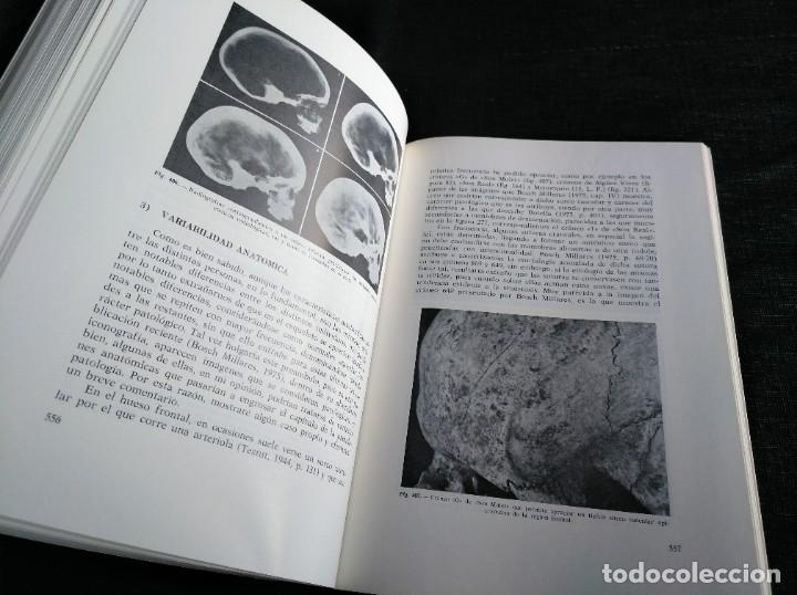 Libros de segunda mano: PALEOPATOLOGÍA DEL CRANEO EN CATALUÑA, VALENCIA Y BALEARES - DOMINGO CAMPILLO - Foto 10 - 195119312