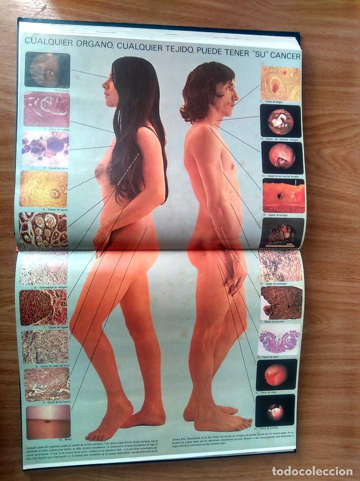 Enciclopedias de segunda mano: LA MEDICINA Y LA SALUD - COMPLETA: 7 VOLÚMENES- ED RIODUERO MIÑÓN 1973 - 2160 PAG - Foto 11 - 189895342