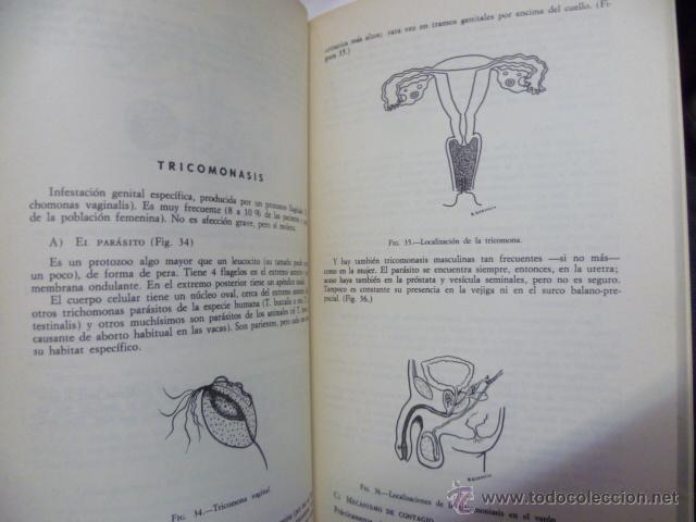 Libros de segunda mano: GUIONES DE GINECOLOGIA - BEDOYA GONZALEZ, Jose Mª - Foto 3 - 44675024