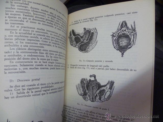 Libros de segunda mano: GUIONES DE GINECOLOGIA - BEDOYA GONZALEZ, Jose Mª - Foto 4 - 44675024