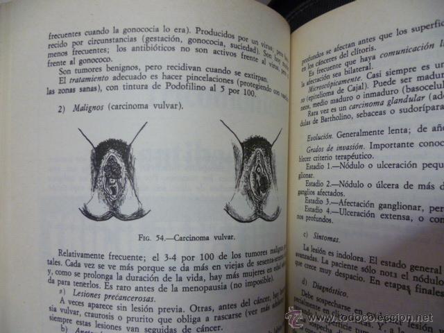 Libros de segunda mano: GUIONES DE GINECOLOGIA - BEDOYA GONZALEZ, Jose Mª - Foto 5 - 44675024